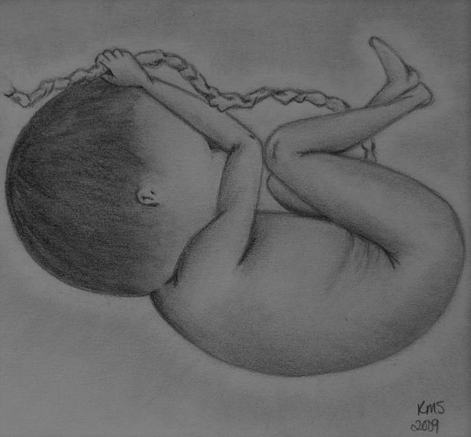 Embryo, Life In Pencil. Abortion in Malta